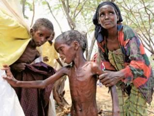 Anak-anak Somalia kurus-kering karena perang berkepanjangan.jpg